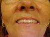 implantologia-caso1-depues